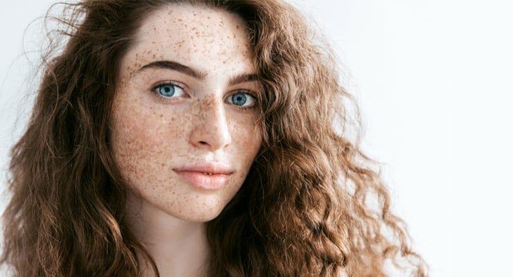 apa itu freckles