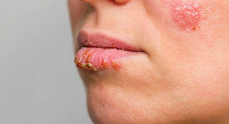 Mengenal Herpes Kelamin, Penyakit Menular Seksual yang Menimbulkan Bintil Gatal dan Perih