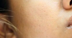 Cara mengecilkan pori-pori kulit