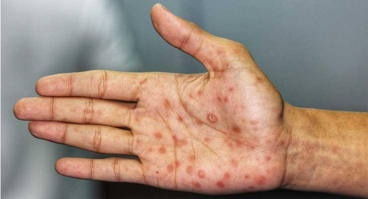 ciri-ciri penyakit sipilis
