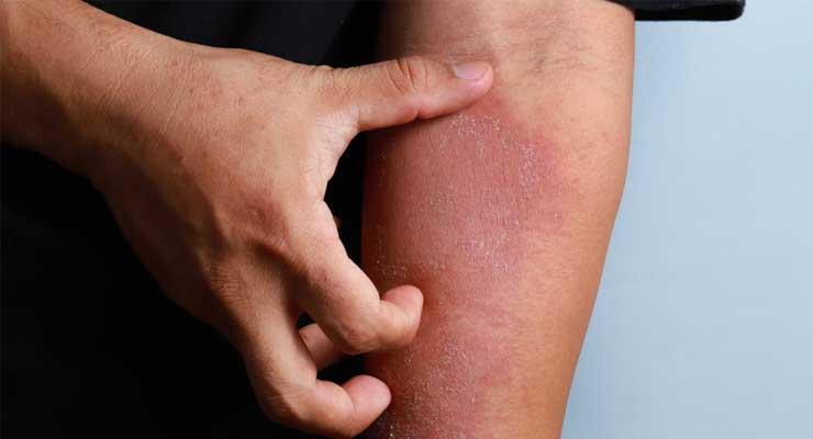 jenis penyakit kulit