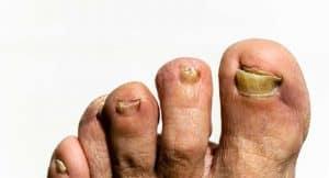 penyakit onikomikosis