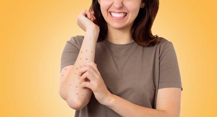 Penyakit Scabies, Gangguan Kulit yang Menyebabkan Kulit Ruam Bersisik