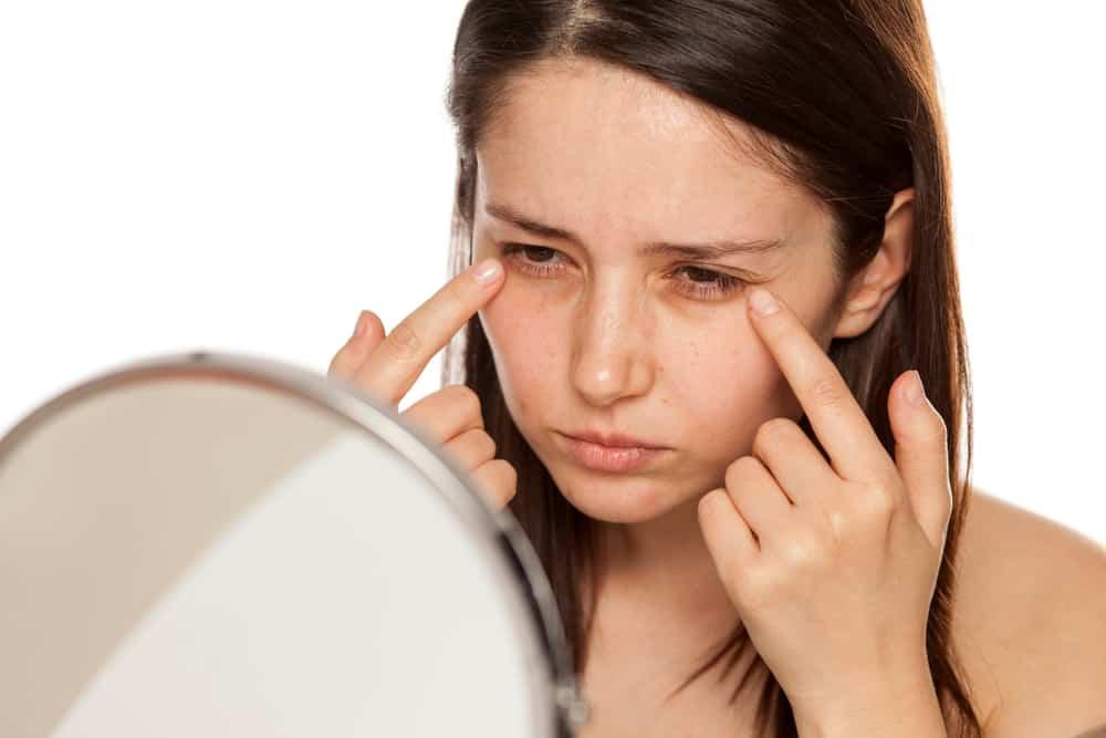 Punya Masalah Lingkar Hitam di Bawah Mata? Coba Tips Ampuh Ini